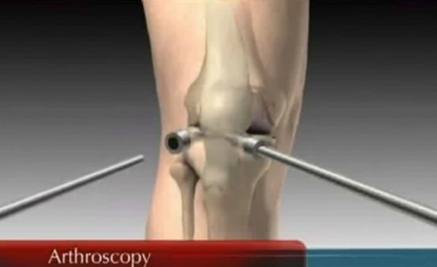 Conservative or Non-Invasive Treatment for Knee Pain