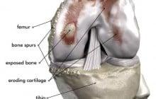 Damaged Knee Joint Illustration