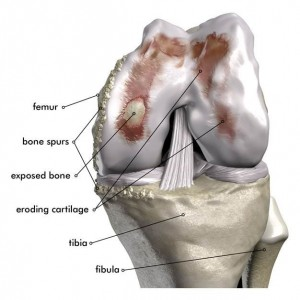 Damaged Knee Joint Illustration