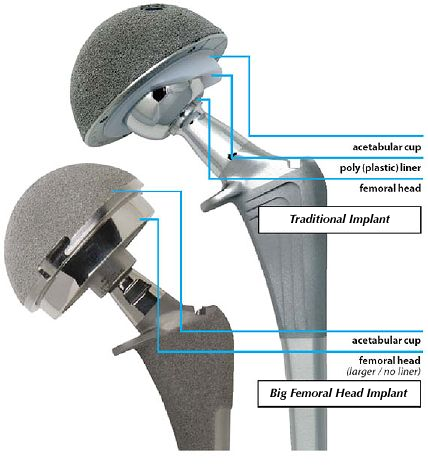 types of hip prothesis sizes This surgery is frequently sought by women who are unhappy with the size of you an ideal candidate for buttock implants the implant, type of.