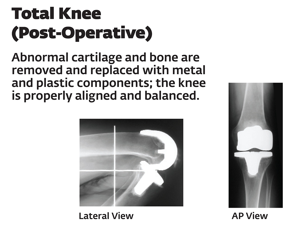 Post operative total knee replacement x-ray (image courtesy of DJO Surgical)