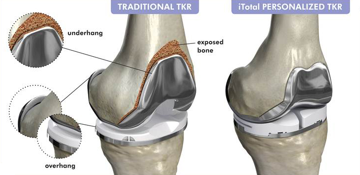 Knee Implants: Customized, Personalized & Specialized Options