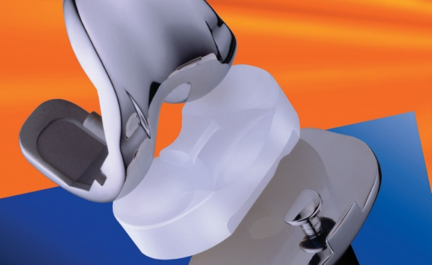 Knee Replacement Implant Materials