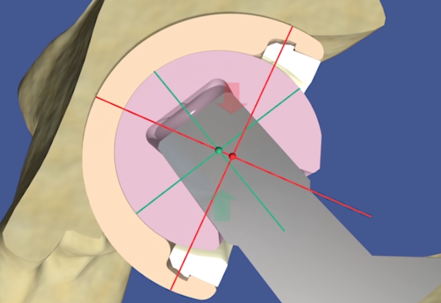 Hip Replacement Implant Materials