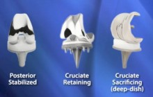 Microport Types of Knee Implants
