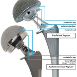 Big Femoral Head (MicroPort)