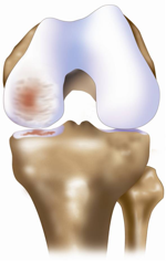 Unicompartmental Osteoarthritis (image credit: ConforMIS)