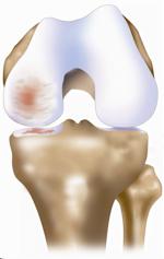 Unicompartmental Osteoarthritis (image credit: ConforMIS)