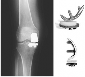 unispacer knee device implants