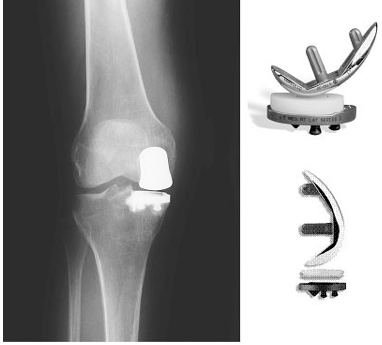 Partial Knee Replacement >> Minimally Invasive Knee Replacement Approaches And Procedures