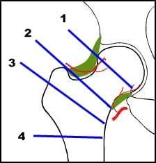 neck of femur bone