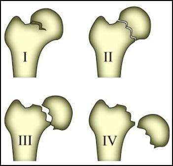 degrees of femur fractures