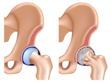 arthritic hip