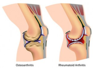 Common Types of Arthritis of the Knee