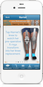 Get MyKneeGuide in the App Store >>