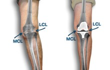 Crooked knee straightened after knee replacement
