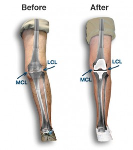 crooked knee straightened with knee replacement