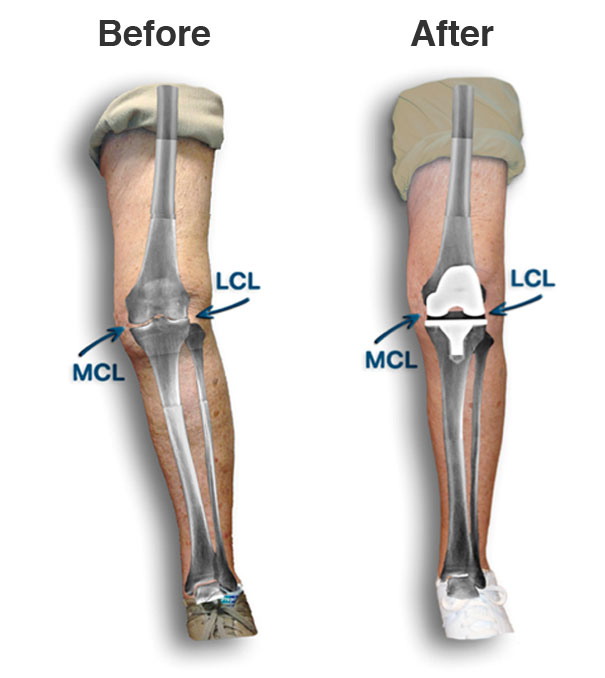 Will my knee be straightened with surgery?