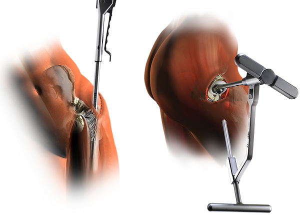SUPERPATH® hip replacement