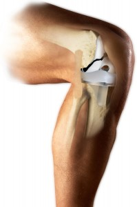 Knee Implant with Polyethylene Liner (MicroPort Orthopedics)