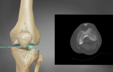 ConforMIS Knee Imaging