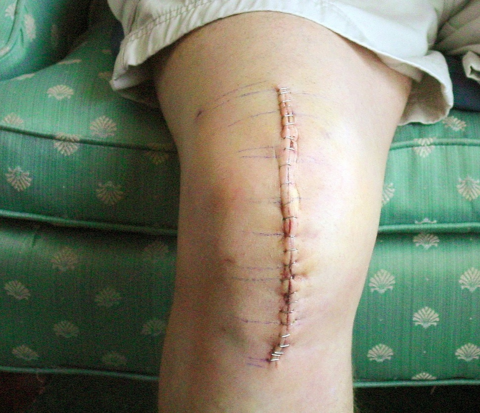 Knee Revision Surgery