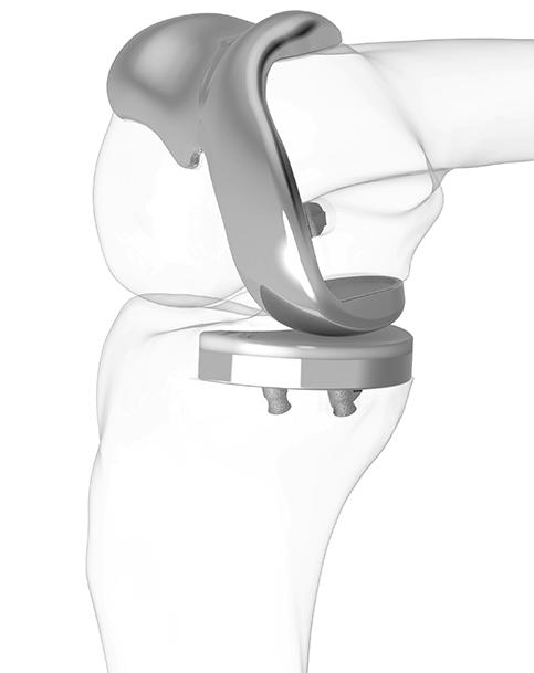 iDuo® Patient-Specific Bicompartmental Knee Resurfacing System -ConforMIS