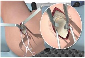 Micro-Posterior Incision