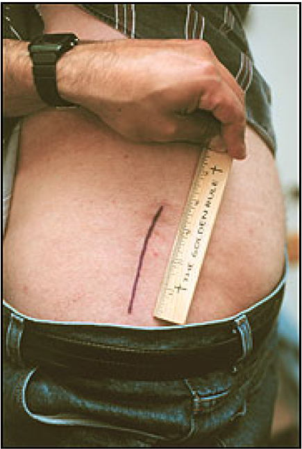 hip replacement incision scar