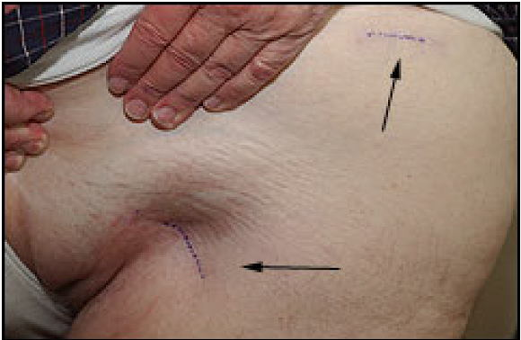 MIS-2-incision method