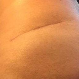 96 days out of surgery, scar much less visible with scar shield